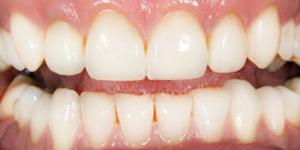 Dental Crowns and Bridges Davie FL