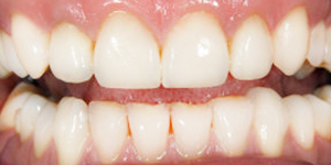 Dental Crowns and Bridges Fort Lauderdale FL