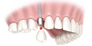 Dental Implants Boca Raton FL