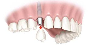 Dental Implants Lauderdale by the Sea FL