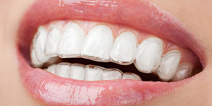 Invisalign Hollywood FL