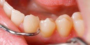 Teeth Cleaning Davie FL