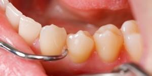 Teeth Cleaning Plantation FL