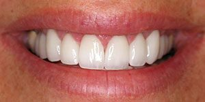 Veneers Weston FL