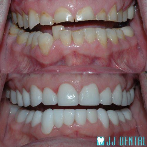 Best Cosmetic Dentist Fort Lauderdale