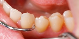 Teeth Cleaning Weston FL