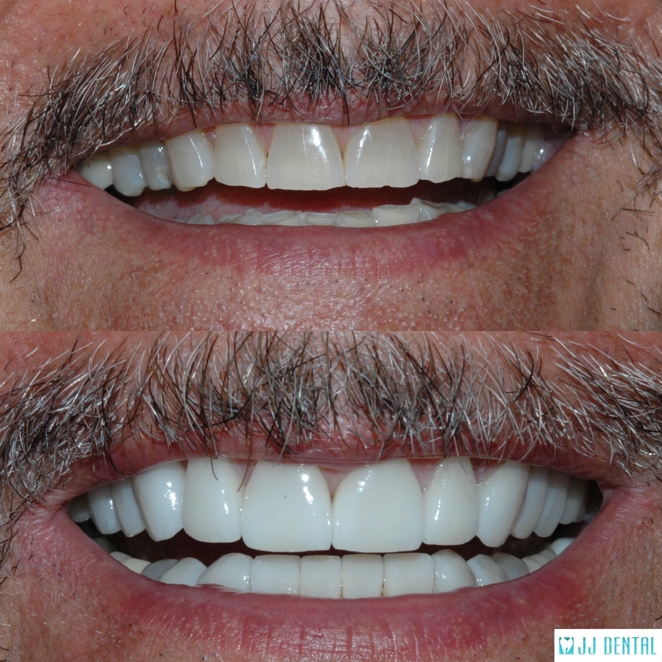 Before & After Veneers