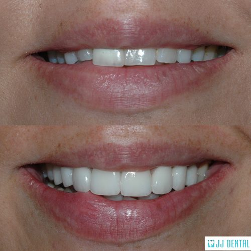 Before & After of 7 Porcelain Crowns and 1 Veneer