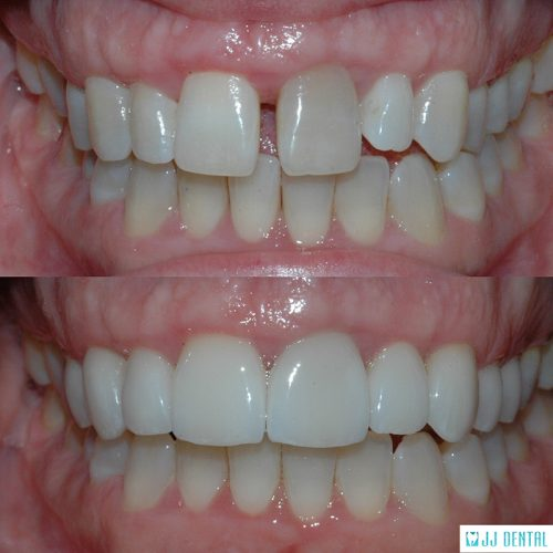 Before & After - October Smile Transformation
