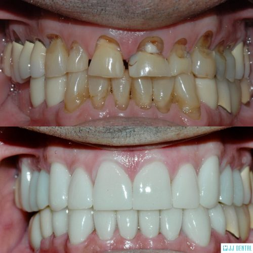 Full Mouth Reconstruction - Before & After