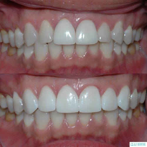 Veneer Revision - Before & After