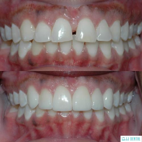 6 Veneers - Before & After