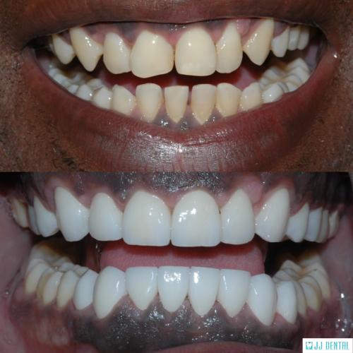 Before & After - Invisalign + 20 Veneers