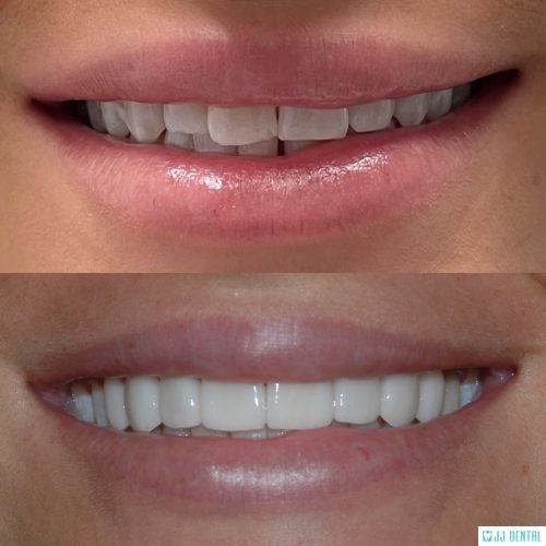 Before & After - 8 Porcelain Veneers
