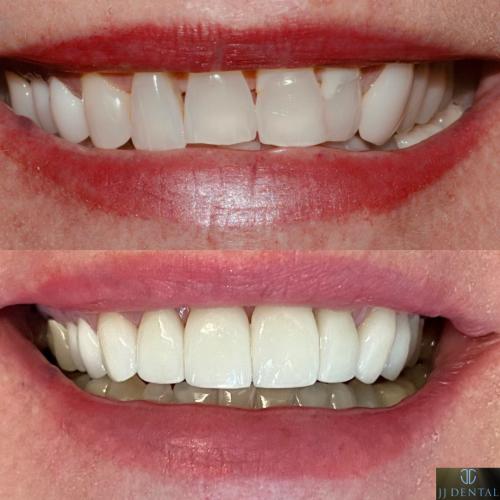 Before & After 8 Veneers