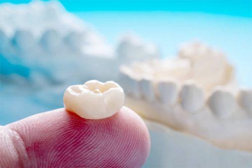 JJ Dental - Crowns & Bridges