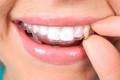 JJ Dental - Invisalign