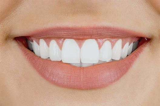 JJ Dental Veneers