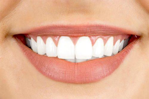 JJ Dental - Veneers