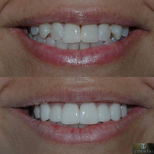 Before & After 6 Veneers
