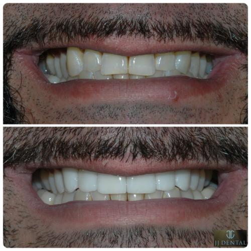Before & After - 8 Veneers