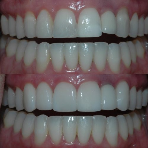 Before & After - Veneers and implant crown replacement